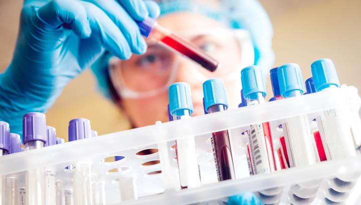 Tampone NEGATIVO Coronavirus Covid-19 del paziente rumeno che il 10 marzo è andato al PPIT di Torremaggiore