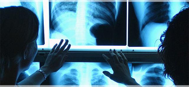 Torremaggiore: il Sindaco Pasquale Monteleone chiede all'Asl FG di intervenire per la regolare operatività del Servizio di Radiologia al PTA San Giacomo